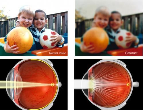 Катаракта – заболевание глаза