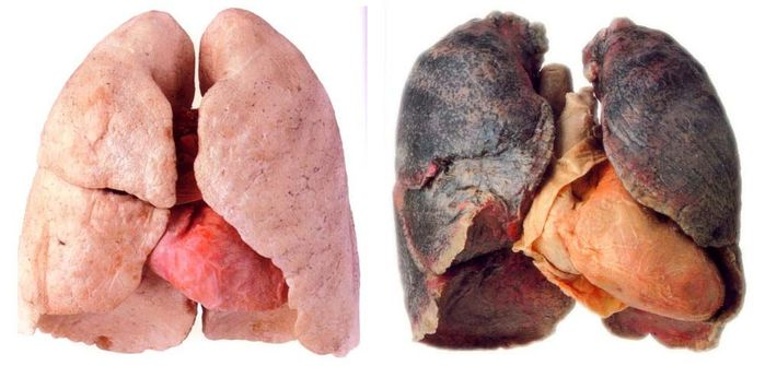 Риск развития рака лёгких